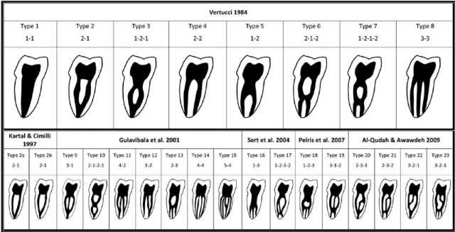 Mandibular-first-molar-root-configuration-reported-in-the-literature